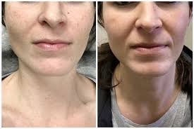can you wear makeup after an ipl photo