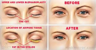 under eye bags