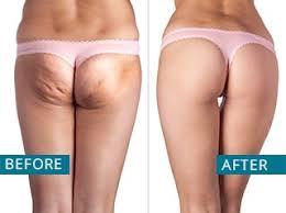 i lipo laser lipo non surgical