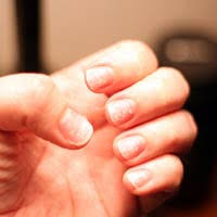 brittle nails get back the moisture
