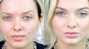6 tips makeup untuk kamu yang berjerawat