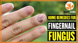 5 home remes for fingernail fungus