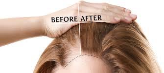 hair loss clinic uk