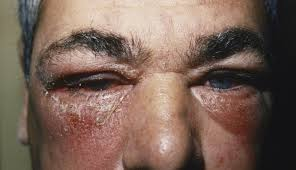 itchy red rash and periorbital swelling