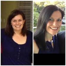 hypothyroid in photos before and after