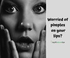 get rid of pimples on lip line areas