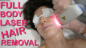 full body laser hair removal does it