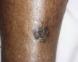 Image result for BLACK SKIN AND CANCER