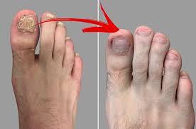 fungal toenails laser treatment best