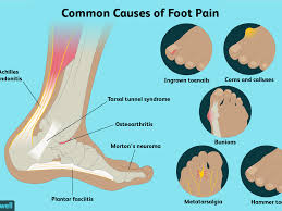 foot pain causes treatment and when