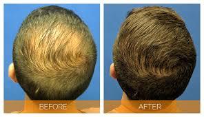 memphis hair doctor hair transplants