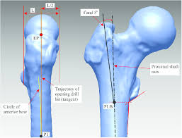 entry points shown for the right femur
