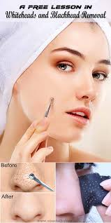 whiteheads and blackhead removal