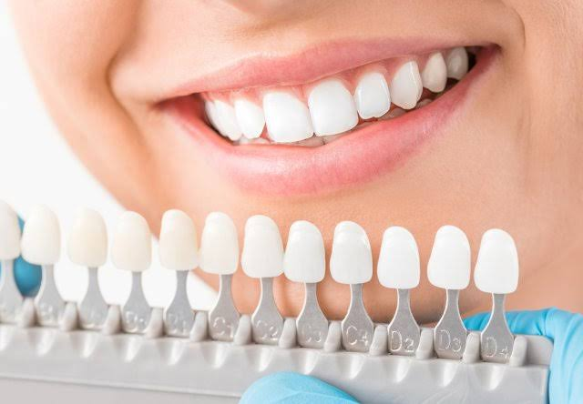 """Image result for cosmetic dentistry"""""""