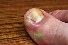 runners make with their toenails