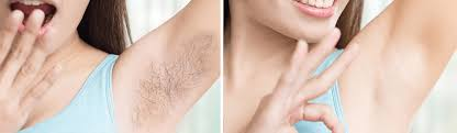 laser hair removal packages here in london