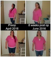 2 month post op gastric sleeve update