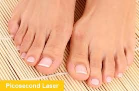 laser toenail fungus removal magic