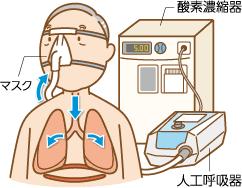 知識編】在宅人工呼吸療法とは|ぜん息などの情報館|大気環境・ぜん息 ...
