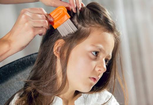 """Image result for Best Recurrent Head Lice Treatment"""""""