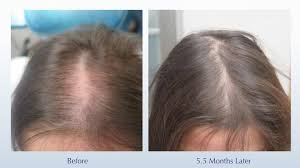 prp acell hair restoration flawless