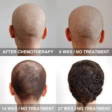 cancer hair loss national