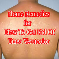 tinea versicolor with home remes