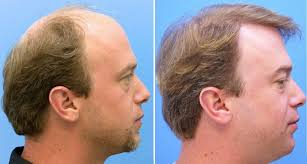 best hair implants place in barcelona