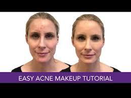 the best concealer makeup for acne