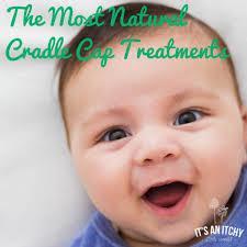 the most natural cradle cap treatments