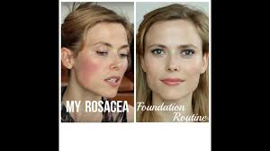 my rosacea foundation routine makeup