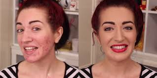 how to cover up acne scars with makeup