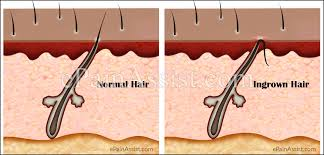 what causes ingrown hair and how to get