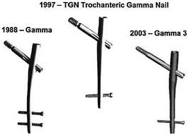 third generation short gamma nail