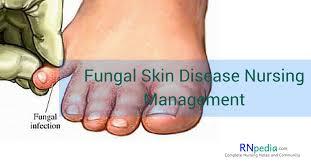 fungal skin disease nursing management