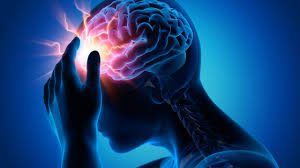 Glutamate Excitotoxicity and Ischemic Stroke » the nerve blog | Blog  Archive | Boston University