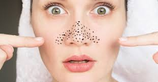 diy face mask for blackheads removal