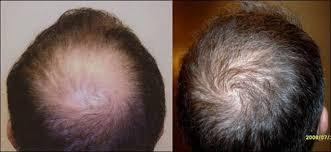 hair transplant near me neograft near