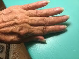 vaseline intensive care healthy hands