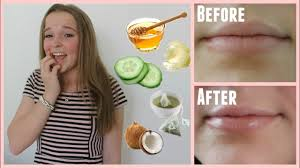 easy ways to cure chapped lips in
