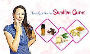 best home remes for swollen gums