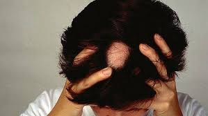 best home remes for alopecia areata