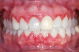fight cavities and gingivitis naturally