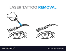 procedure laser tattoo removal vector image