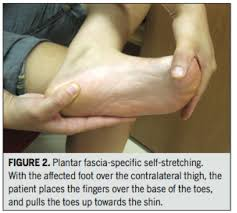 the 411 on plantar fasciitis and how to