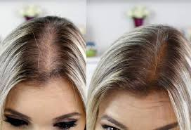Keracap Hair | Queda de cabelo, Cabelo, Fazer o cabelo crescer