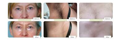 laser hair removal in colchester the