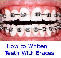 homemade teeth whitening read before