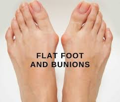 mon causes of painful feet flat