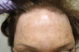 alopecias in lupus erythematosus